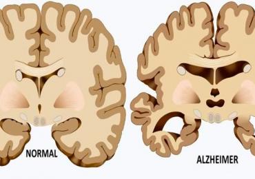 Alzhemimer