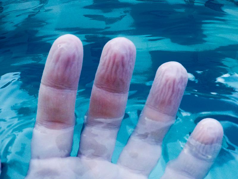 dedos arrugados arrugan
