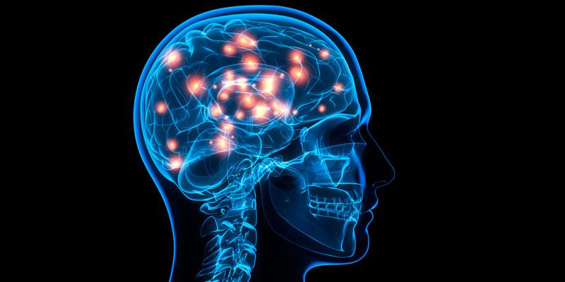Cerebro-lava