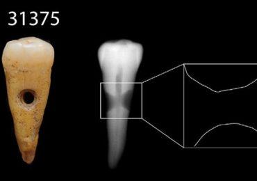 dientes humanos neolítico