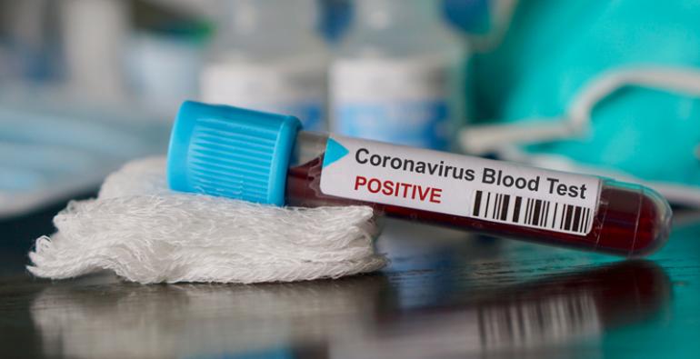 coronavirus latinoamericano