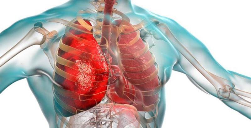 pulmones cuerpo coronavirus pandemia epidemia