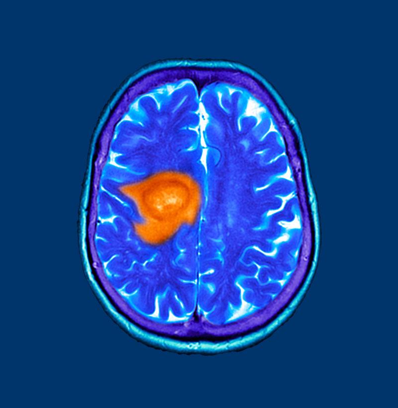 glioblastoma tumores cerebrales
