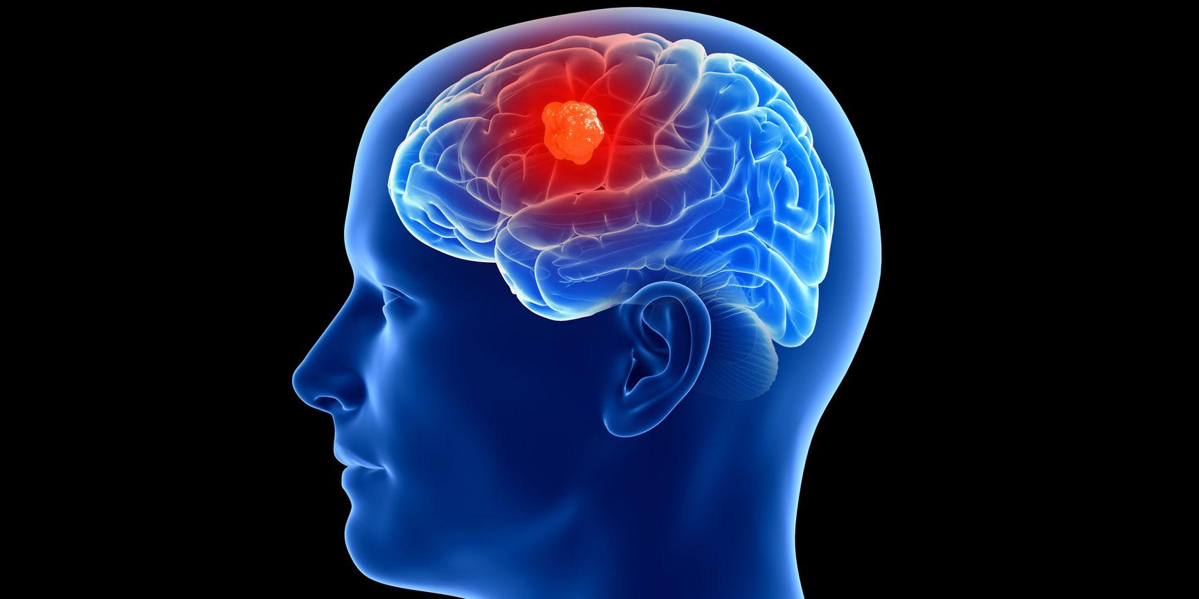 tumor canceroso en el cerebro