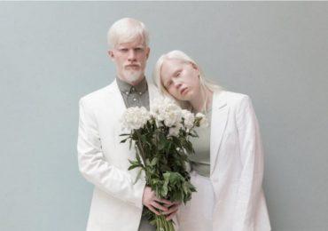 Albinos: Causas y problemas de salud de las personas con albinismo