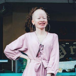 Niña con albinismo